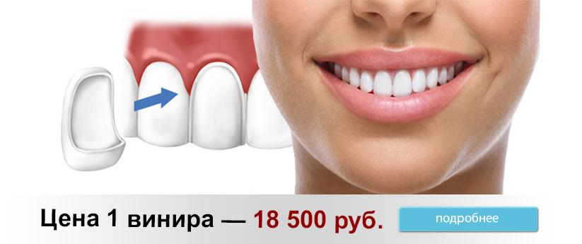 Реклама Виниры