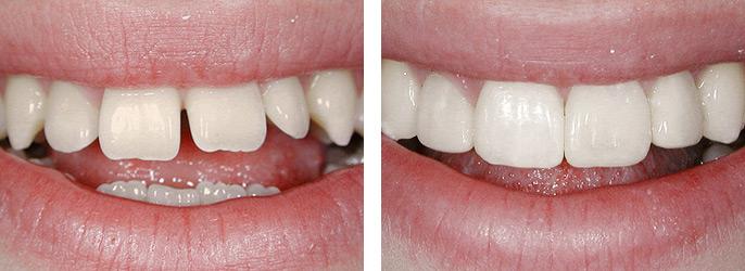 Компониры, фотография до и после
